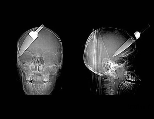 A 5-inch knife embedded in the skull of a teenage boy.
